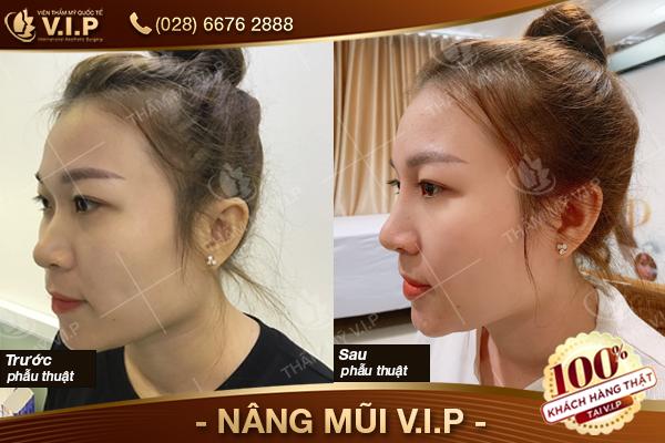 Khách hàng nâng mũi tại VIP